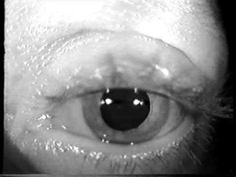 Down Beating Nystagmus - YouTube
